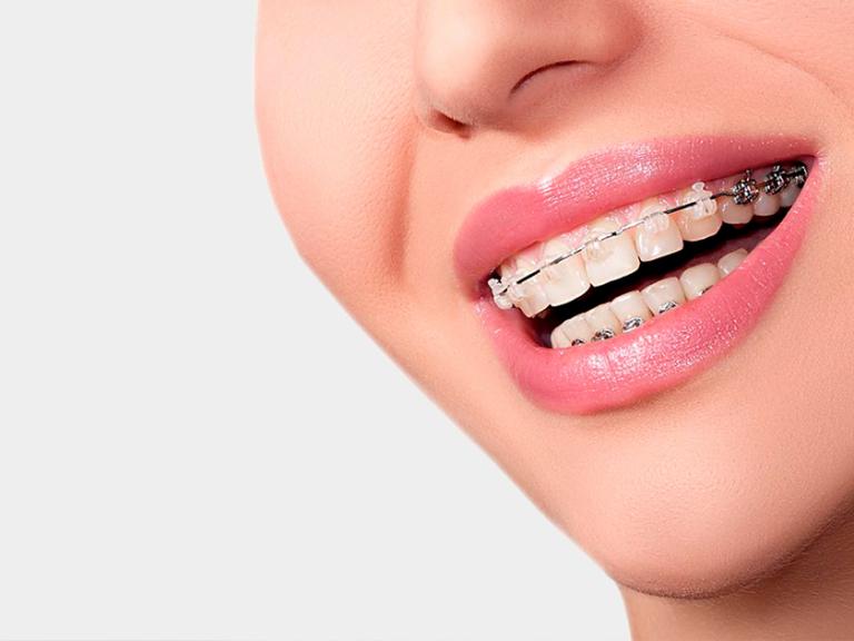 ortodoncia_1200